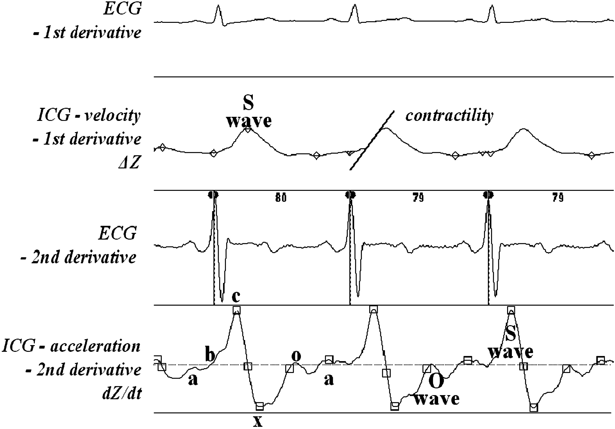 Impedance cardiography